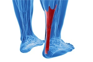 Rendering of human achilles tendon